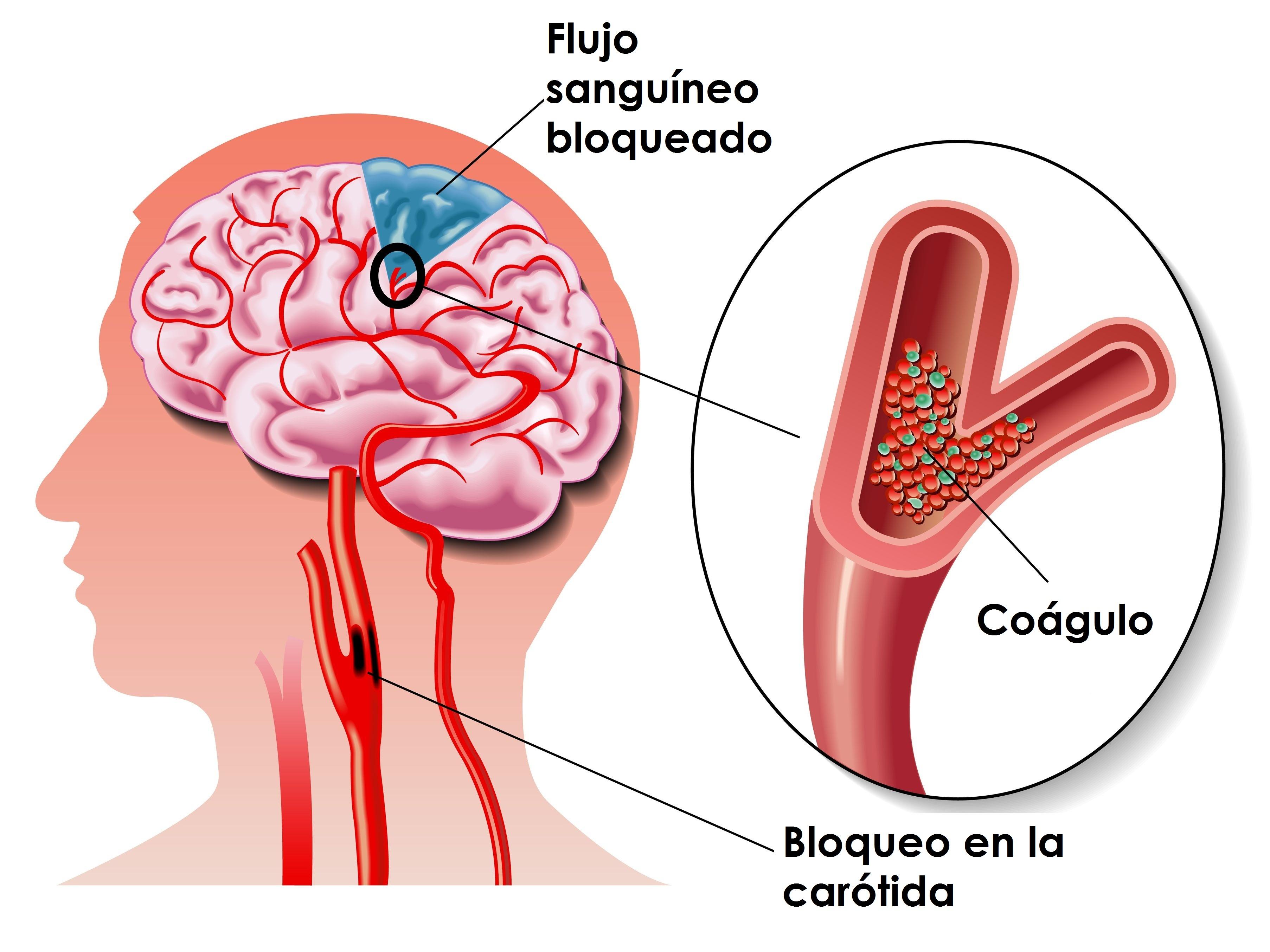 Embolia cerebral en Monterrey